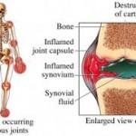 rheumatoid arthritis guidlines